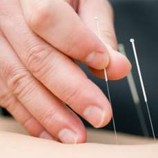 Acupuncture Scottsdale
